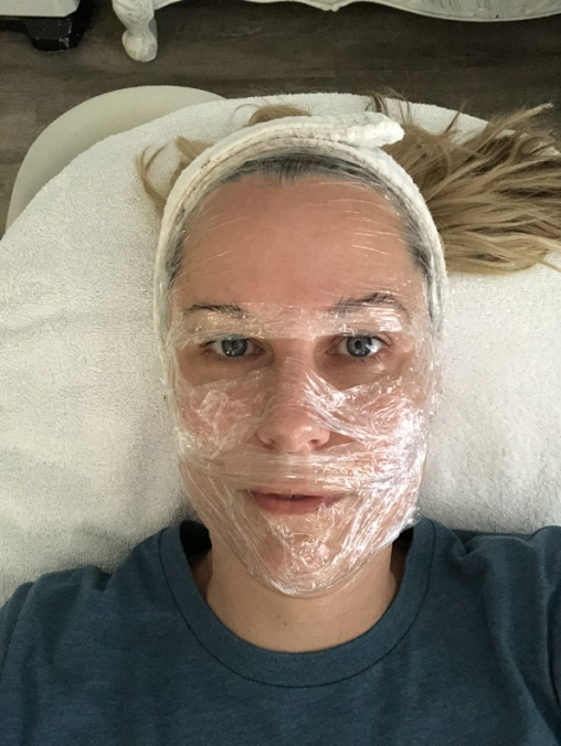 Getting prepped and numbed for microneedling